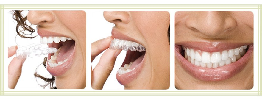5 Advantages of Invisible trays over Braces